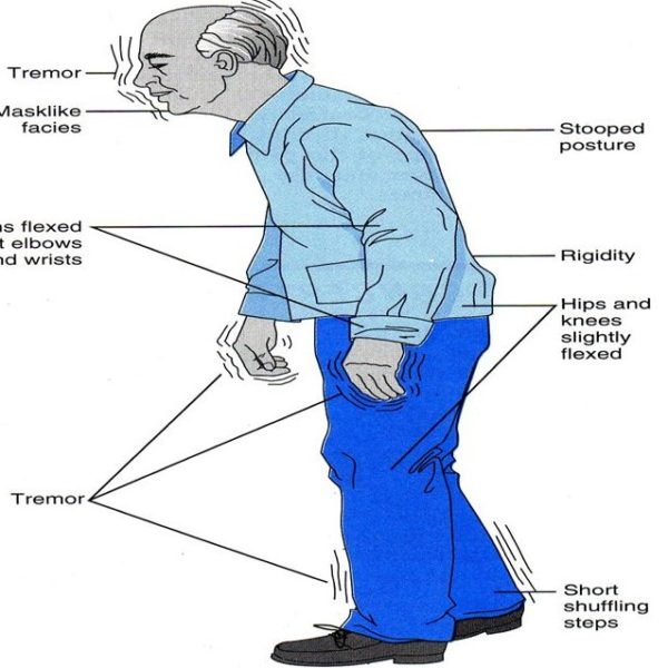 What are Parkinson's disease and signs and symptoms of Parkinson's?