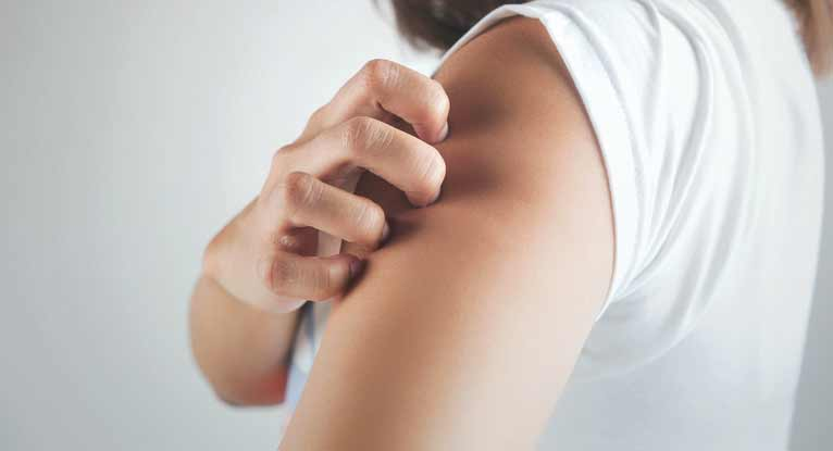 What is psoriasis and how to reduce psoriasis?