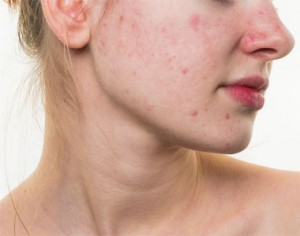 skin-pores-dust
