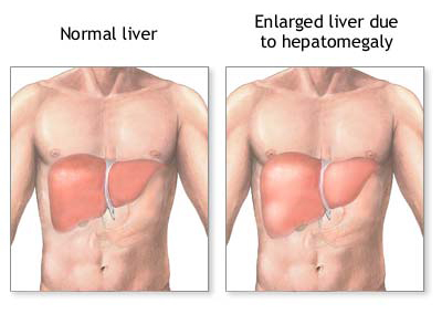 Natural Treatment for Liver Disorders | Hepatitis Treatment | Liver Disorders Remedies