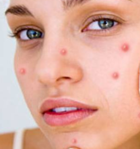 Homeopathic remedy for pimples