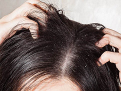 Why And How To Get Rid Of Dandruff Naturally?